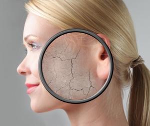 All Natural Dry and Cracked Skin Moisturiser