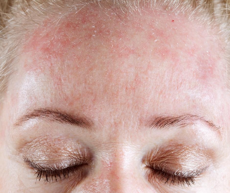 Sensitive Skin: Dry / Sensitive Skin Oil Cleanser Blend