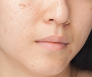 All Natural Oily Skin Moisturiser