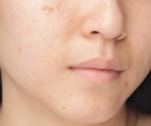 Oily Skin Cleanser Oil Blend
